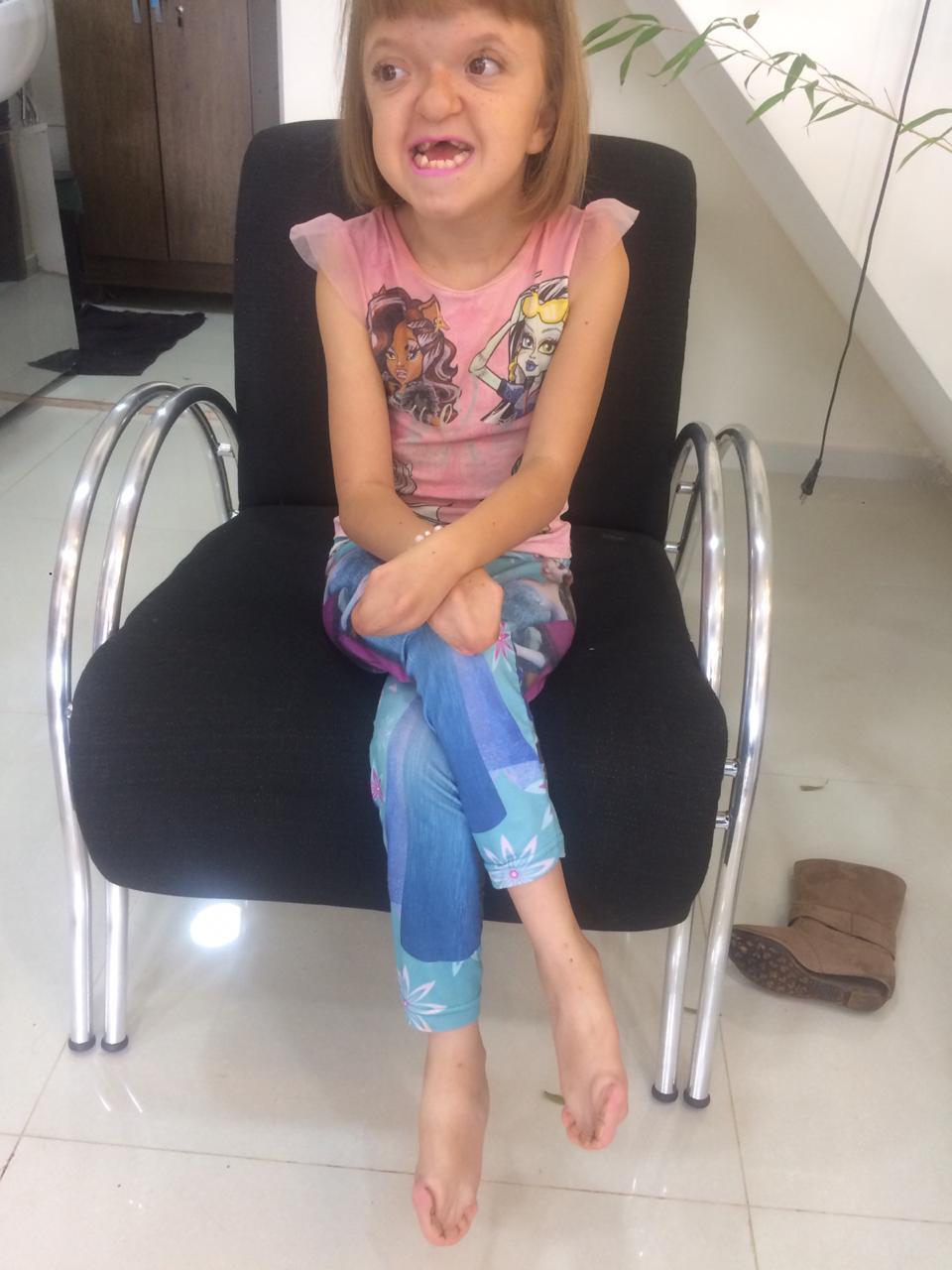 Criança laranjeirense com síndrome rara precisa de cirurgia; conheça sobre a síndrome de Apert
