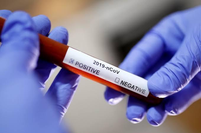 Sobe para seis número de casos de coronavírus em Laranjeiras do Sul